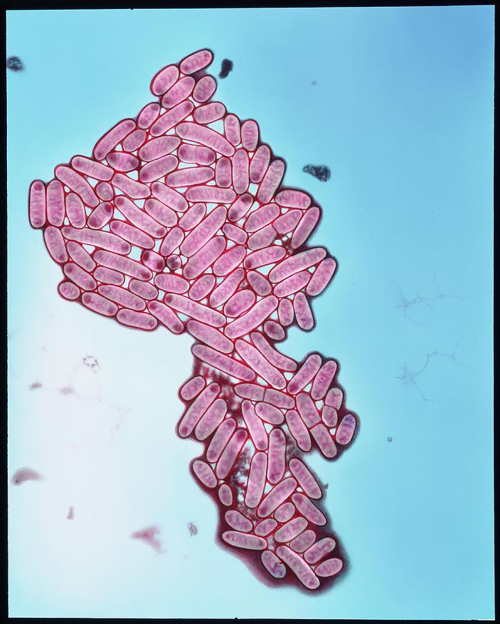 Coloured Tem Of Escherichia Coli Bacteria Photograph