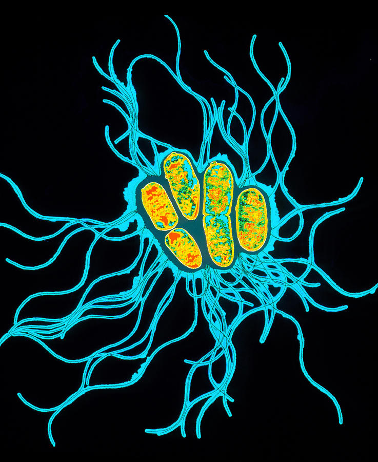 Coloured Tem Of Salmonella Bacteria Photograph  - Coloured Tem Of Salmonella Bacteria Fine Art Print