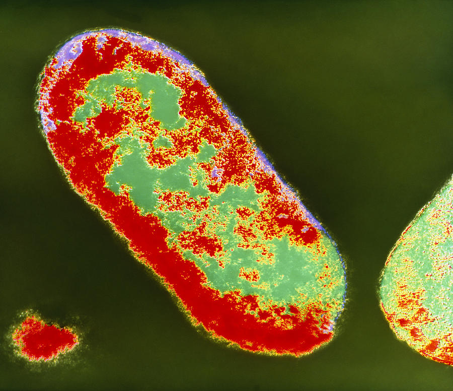 Coloured Tem Of Shigella Sp. Bacteria Photograph  - Coloured Tem Of Shigella Sp. Bacteria Fine Art Print