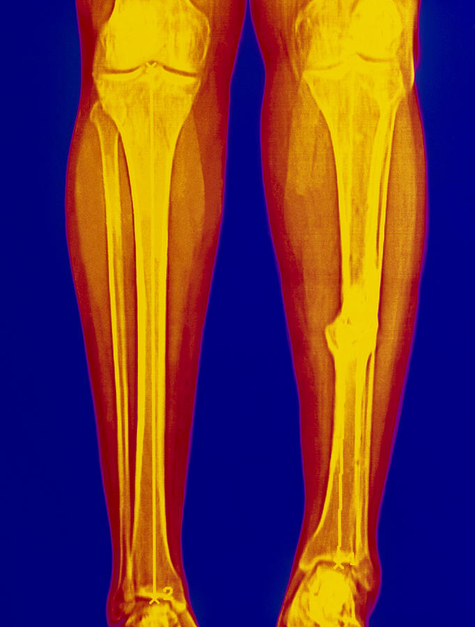 Coloured X-ray Of Fractured Shin Bone (tibia) Photograph ...