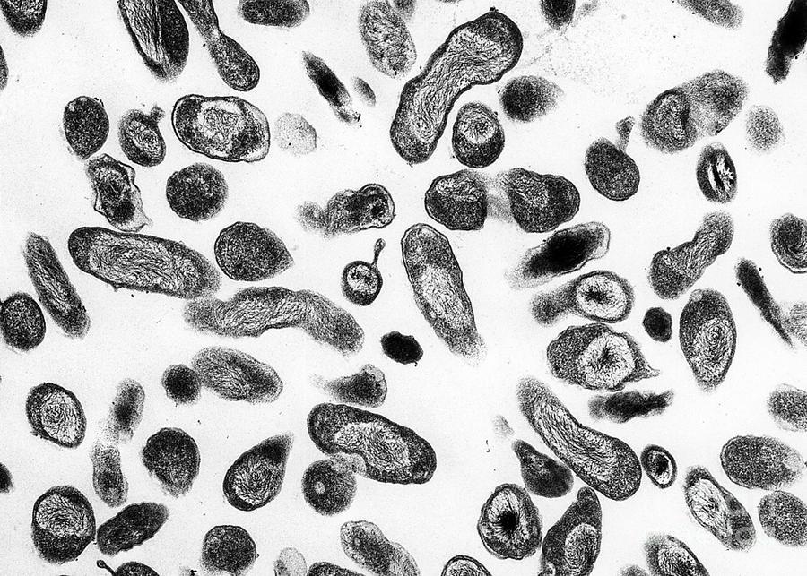 Coxiella Burnetii Bacteria, Tem Photograph
