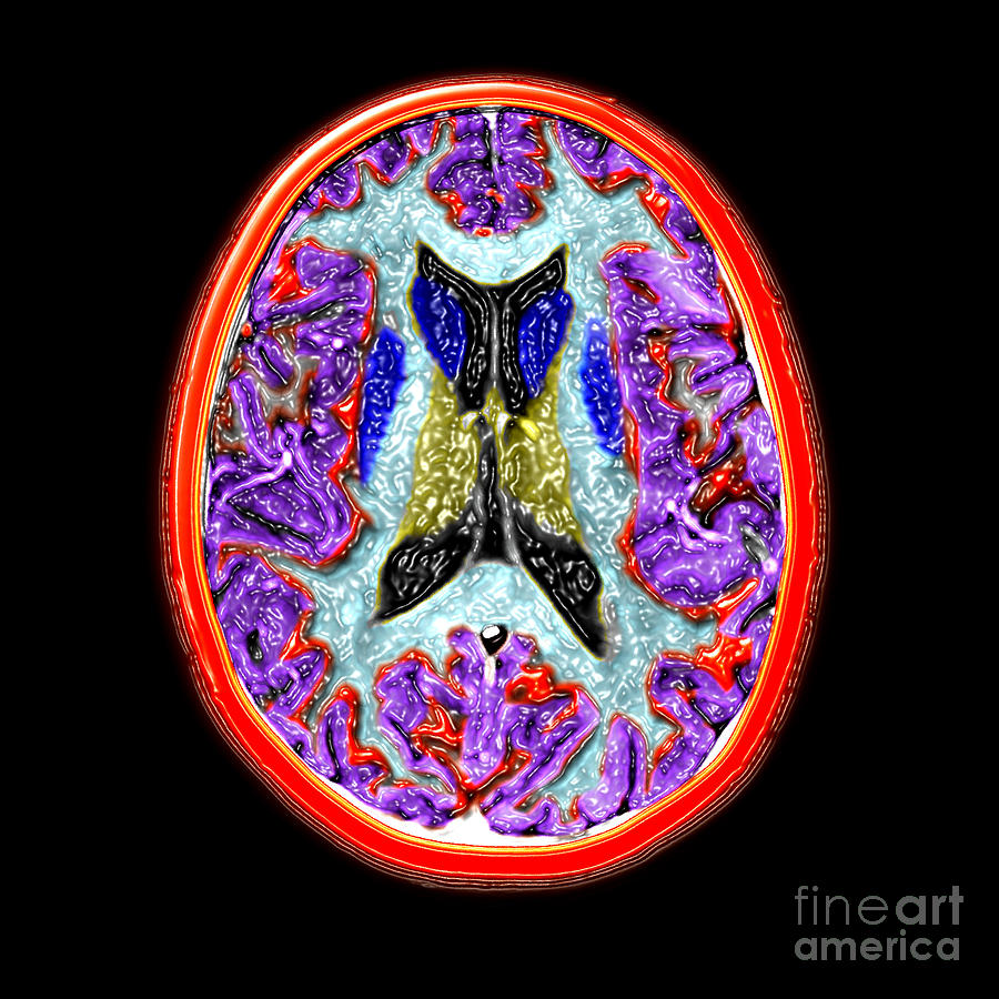 Cross-sectional Mri Of The Human Brain Photograph  - Cross-sectional Mri Of The Human Brain Fine Art Print