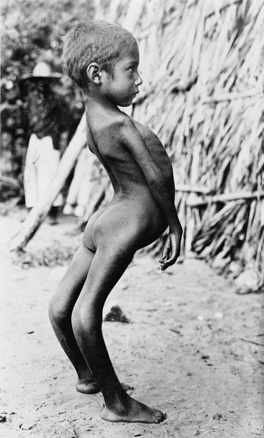 Deformed Mexican Boy, Original Title Photograph