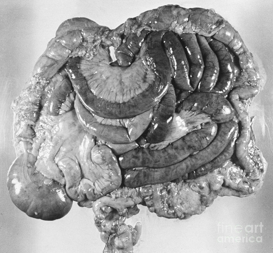 Digestive Organs Photograph