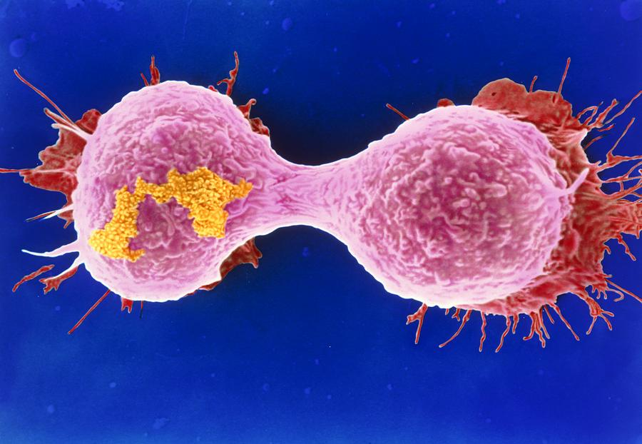 Magnified Image Photograph - Dividing Breast Cancer Cell by Steve Gschmeissner