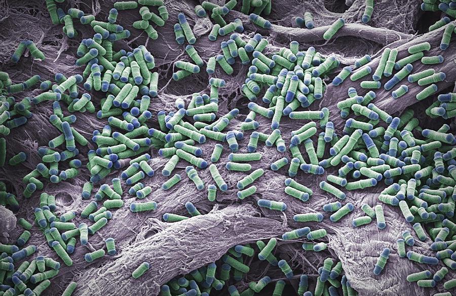 Dividing Yeast Cells, Sem Photograph