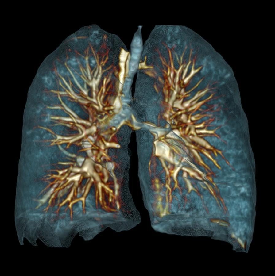 Emphysema, 3d Ct Scan Photograph By Du Cane Medical