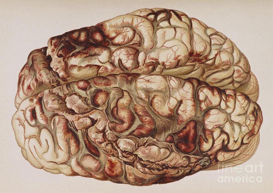 Encircling Gunshot-wound In Brain, 1898 Photograph