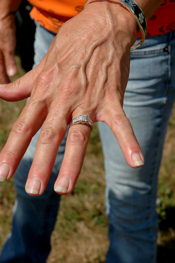 Engaged Photograph