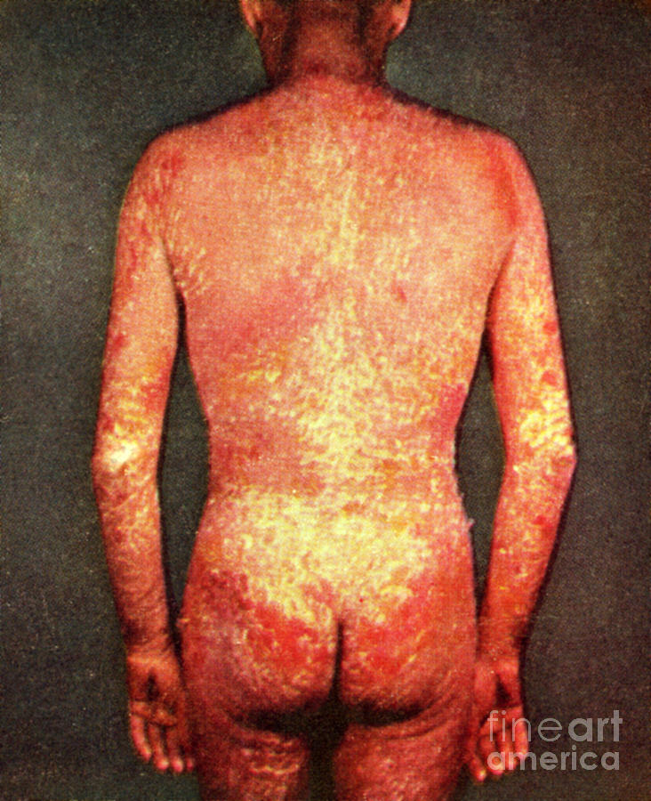 Erythroderma Photograph