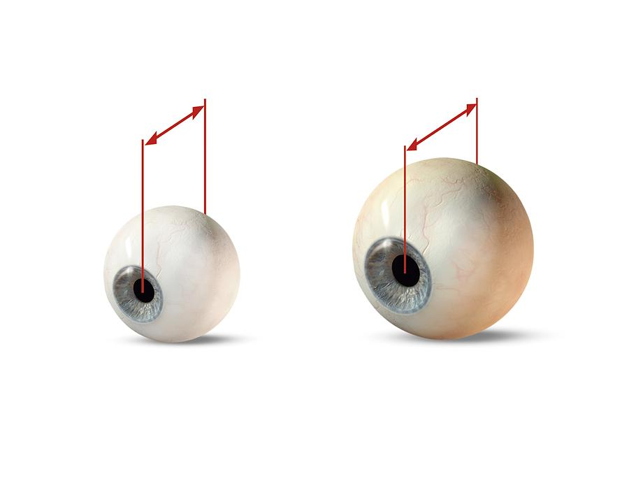 Eye Size Comparison, Artwork Photograph