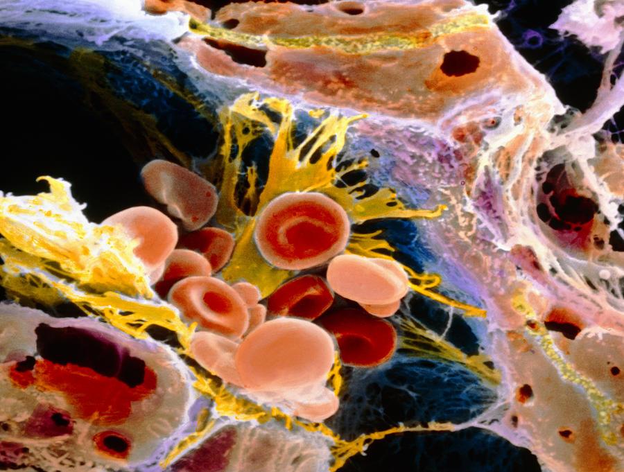 Liver Photograph - F. Colour Sem Of Macrophage & Blood Cells In Liver by Prof. P. Mottadept. Of Anatomyuniversity \la Sapienza\, Rome