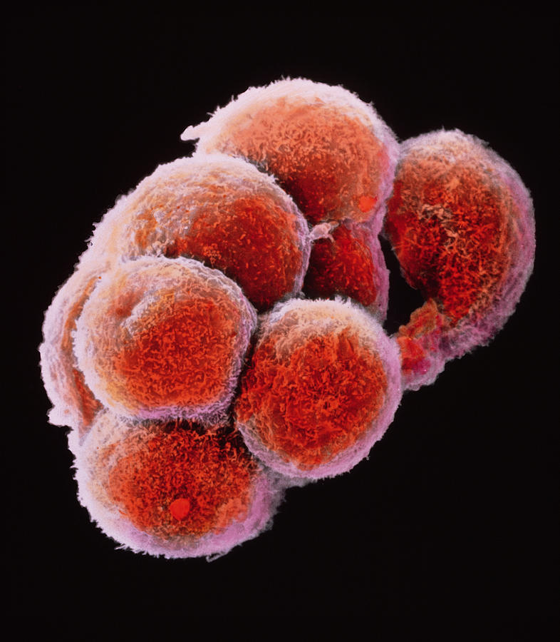 False-colour Sem Of Embryo At The Morula Stage Photograph