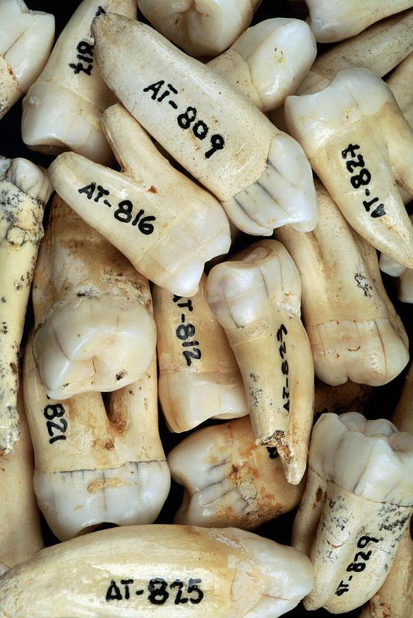 Homo Heidelbergensis Photograph - Fossilised Teeth, Sima De Los Huesos by Javier Truebamsf