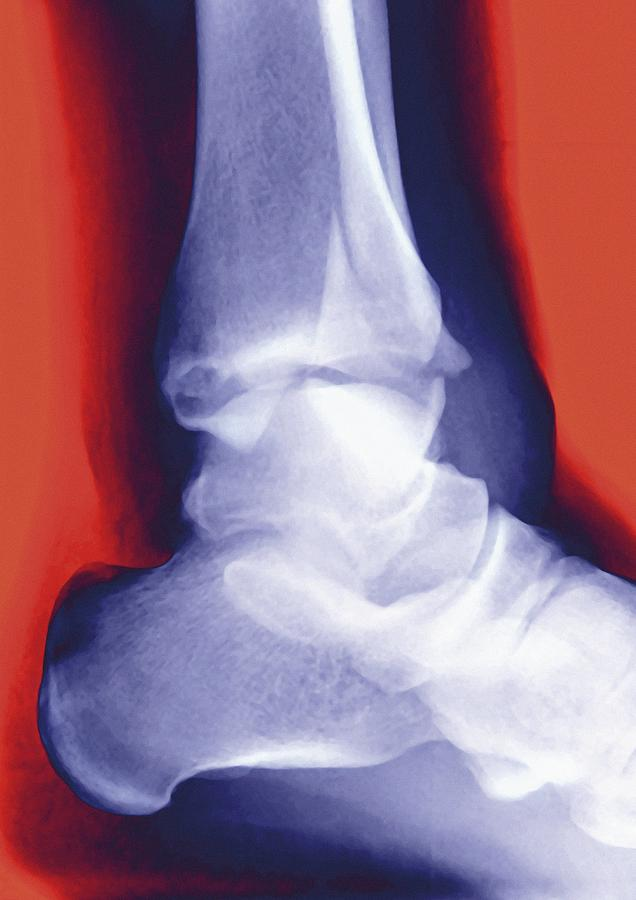 Fractured Ankle, X-ray Photograph by Miriam Maslo