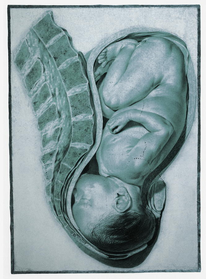 Jan Van Riemsdyck Photograph - Full-term Foetus At 40 Weeks by Mehau Kulyk