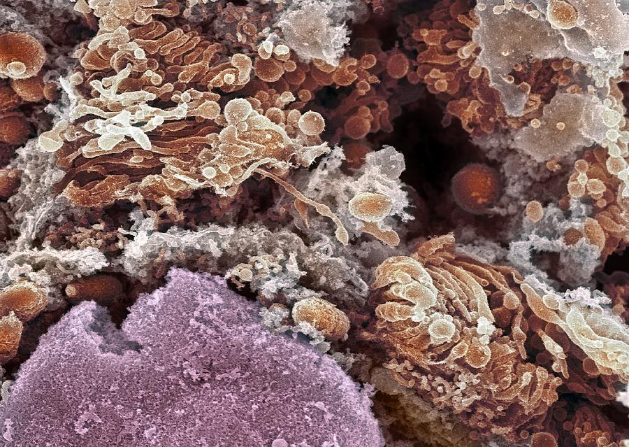 Golgi Apparatus Photograph - Golgi Apparatus, Sem by Dr David Furness, Keele University