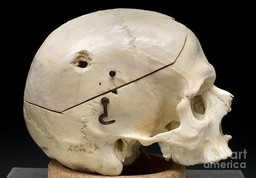 Science Photograph - Gunshot Trauma To Skull, 1950s by Science Source