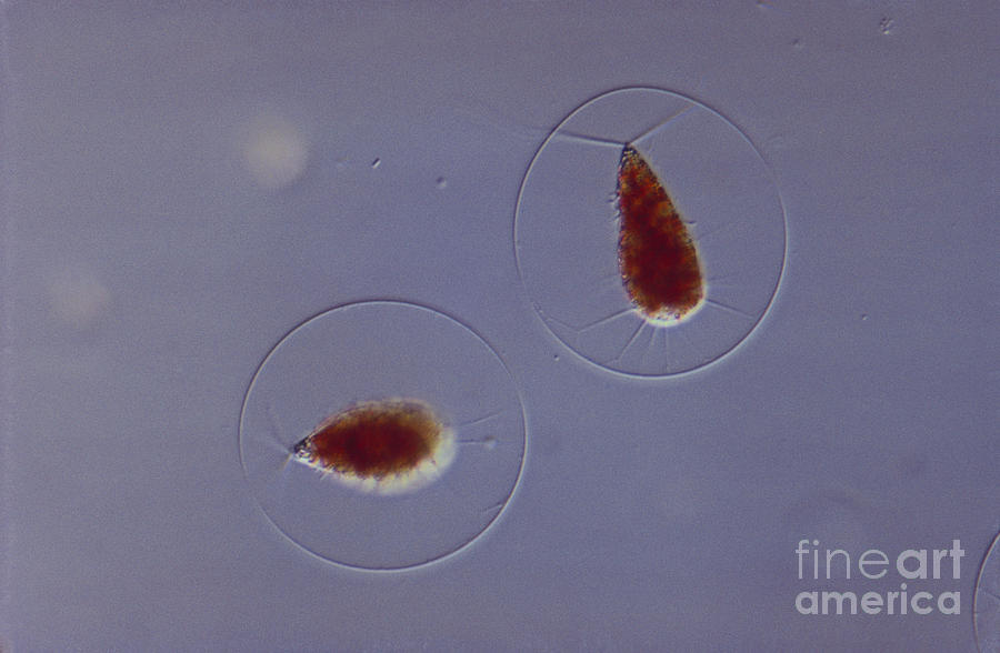 Haematococcus Sp. Green Algae, Lm Photograph  - Haematococcus Sp. Green Algae, Lm Fine Art Print