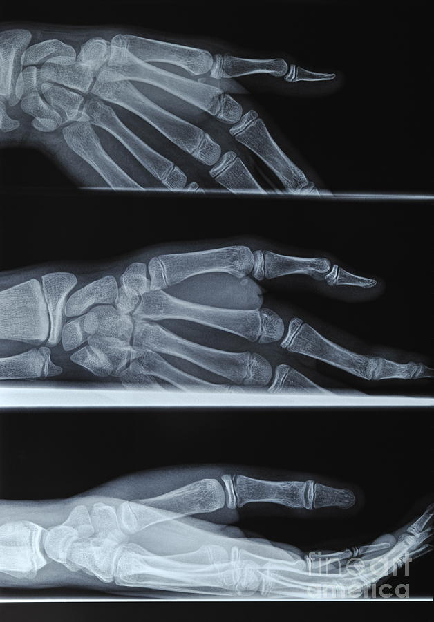 Broken Photograph - Hand X-ray by Sami Sarkis