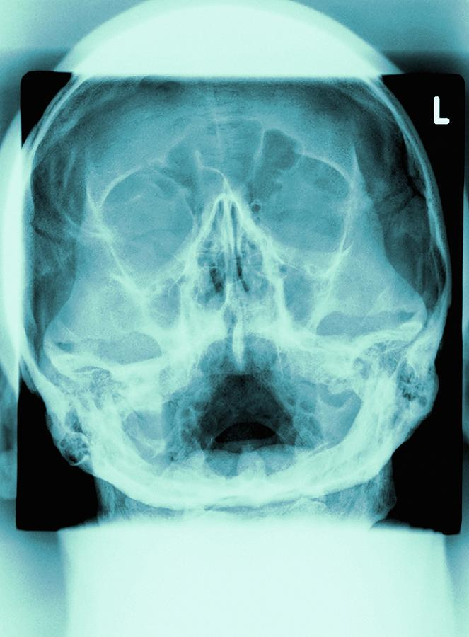 Radiography Photograph - Healthy Skull, X-ray by Miriam Maslo