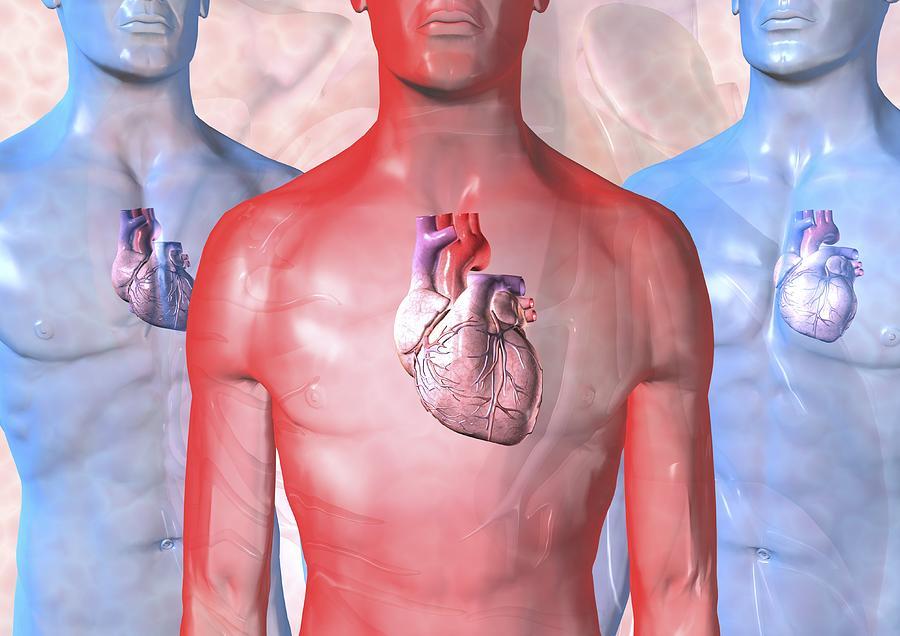 Heart Failure, Artwork Photograph