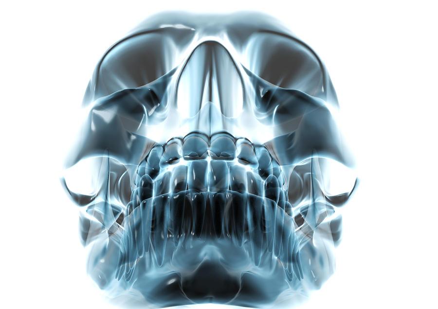 Skull Photograph - Human Skull, Computer Artwork by Robert Brocksmith