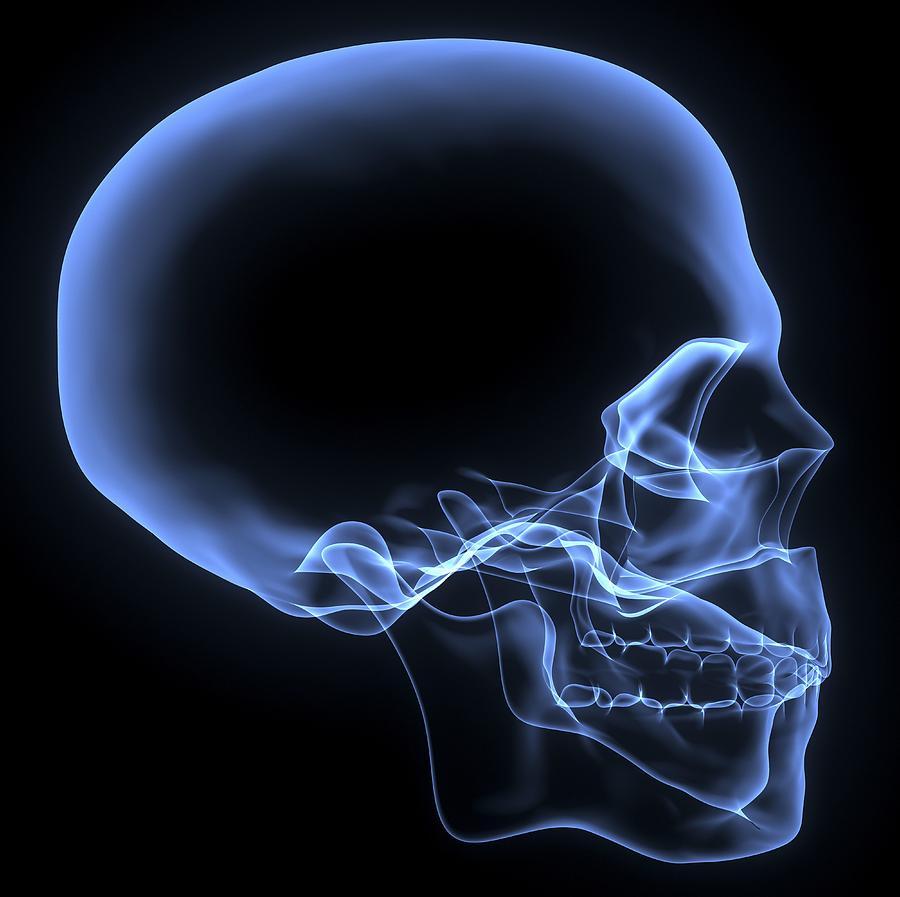 Xray Skull Human skull  x-ray artworkX Ray Skull Views
