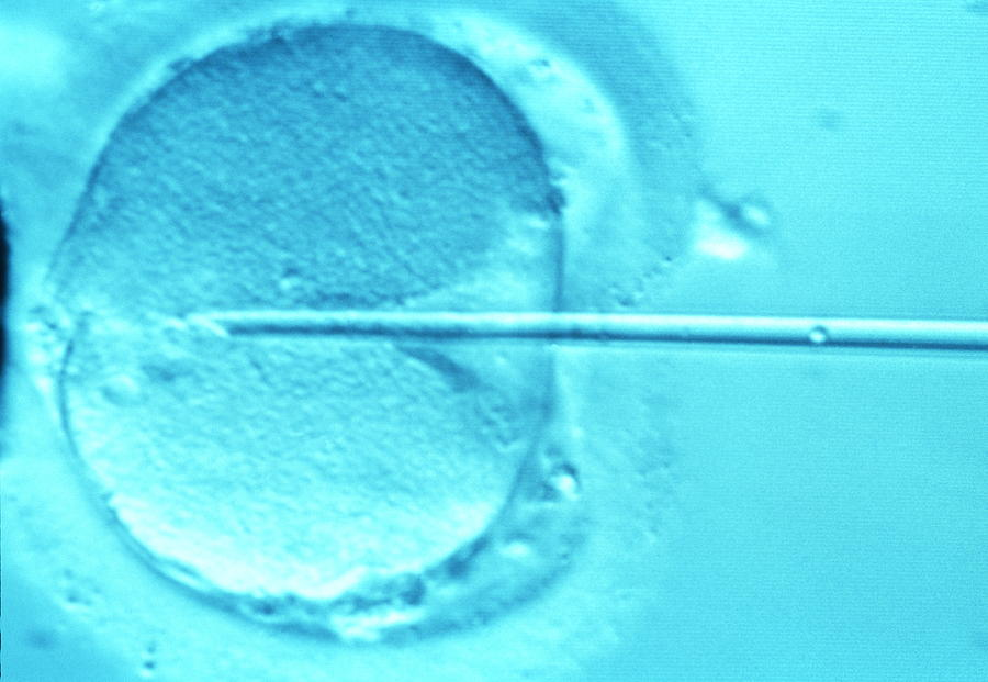 Icsi Method Of In Vitro Fertilization Photograph