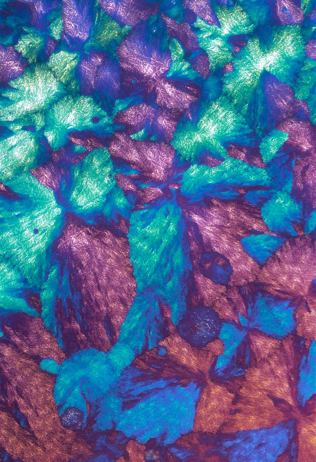 Immunoglobulin Crystals, Light Micrograph Photograph