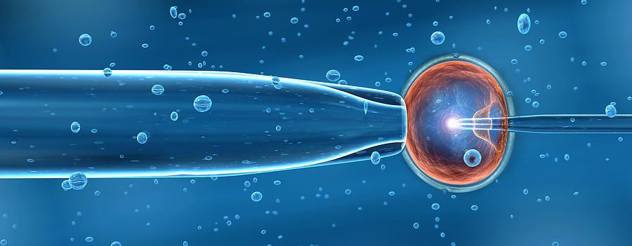 In-vitro Fertilisation Photograph
