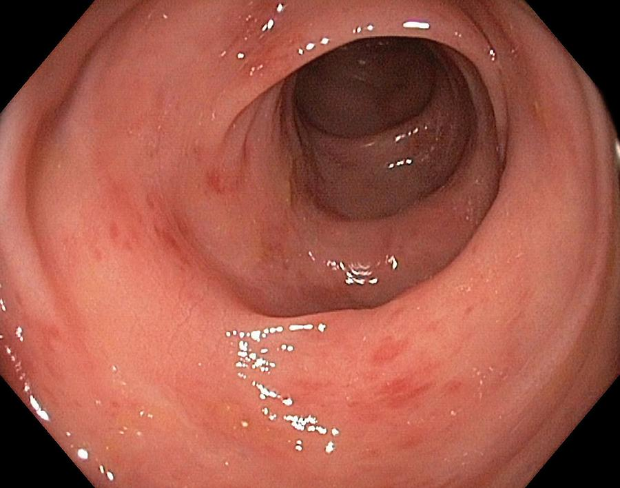 Endoscope View Photograph - Inflamed Colon From Viral Gastroenteritis by Gastrolab