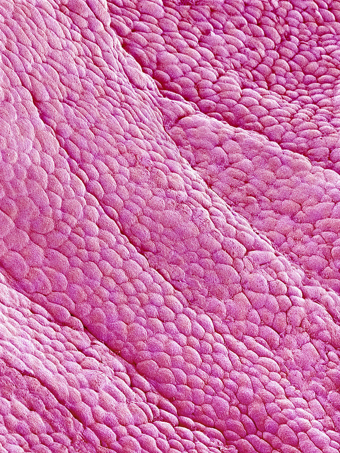 Internal Wall Of Uterus, Sem Photograph