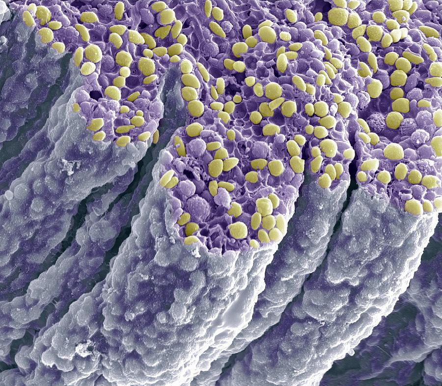 Iris Pigment Epithelium, Sem Photograph