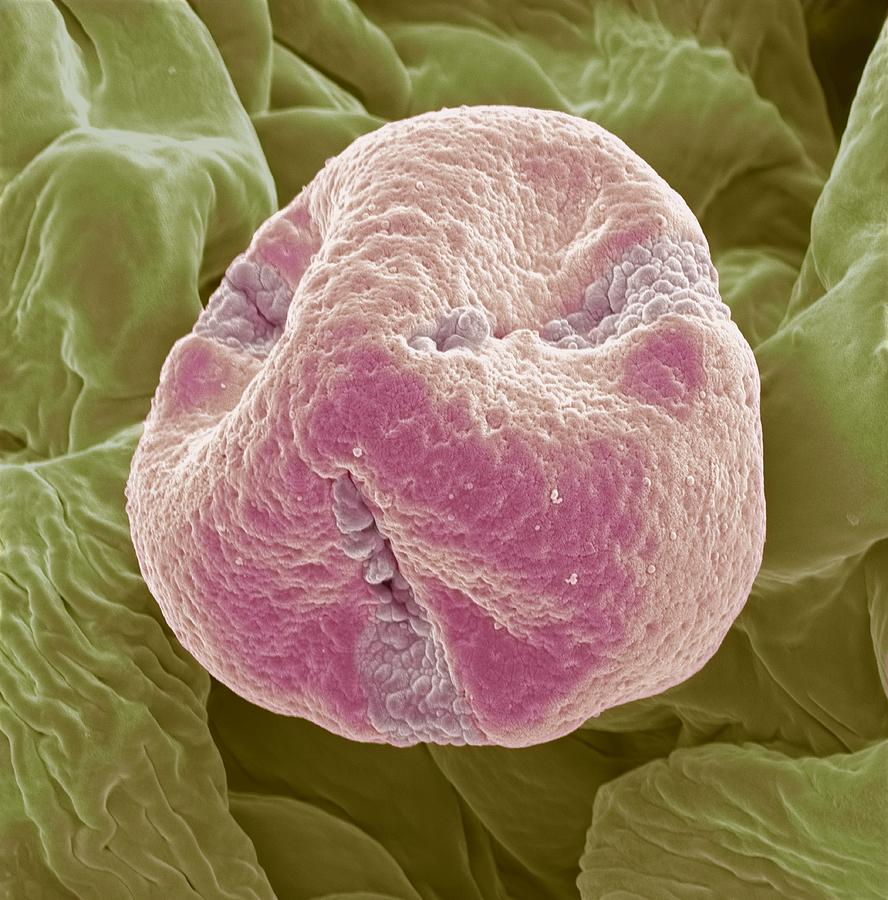Sem Photograph - Kiwi Fruit Pollen Grain, Sem by Steve Gschmeissner