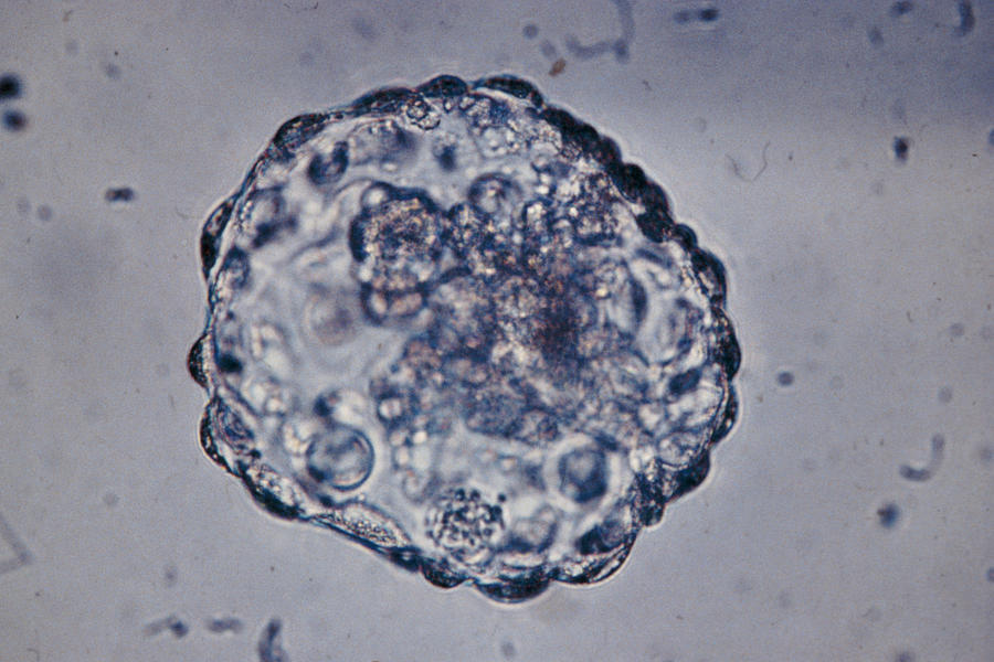 Lm Of Blastocyst (six Day Embryo) After Hatching Photograph