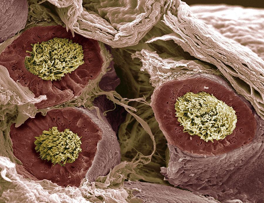 Spermatozoan Photograph - Maturing Sperm, Sem by Steve Gschmeissner