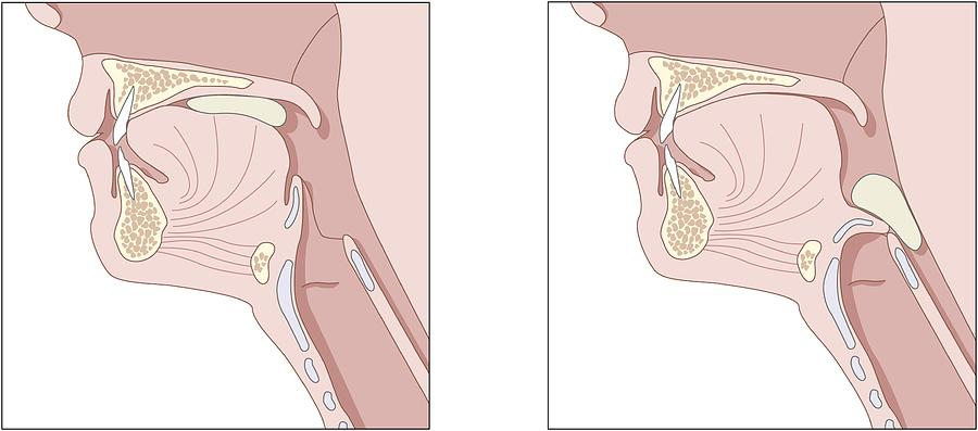 Throat Photograph - Mechanics Of Swallowing, Diagram by Peter Gardiner