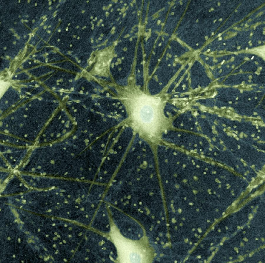 Motor Neurons, Light Micrograph Photograph