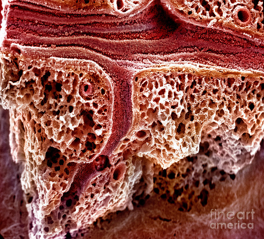 Mouse Lung, Sem Photograph
