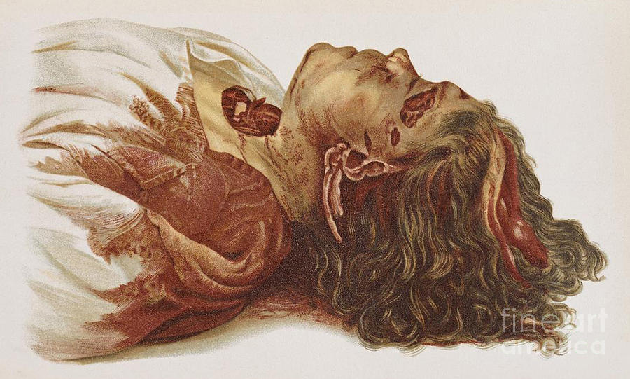 Science Photograph - Murder Victim 1898 by Science Source