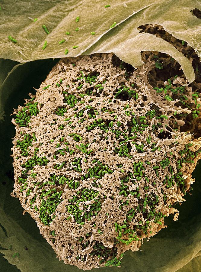Nitrogen-fixing Bacteria, Sem Photograph