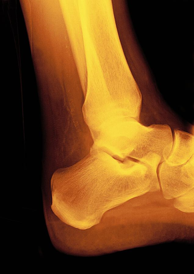 Human Photograph - Normal Ankle Joint, X-ray by Miriam Maslo