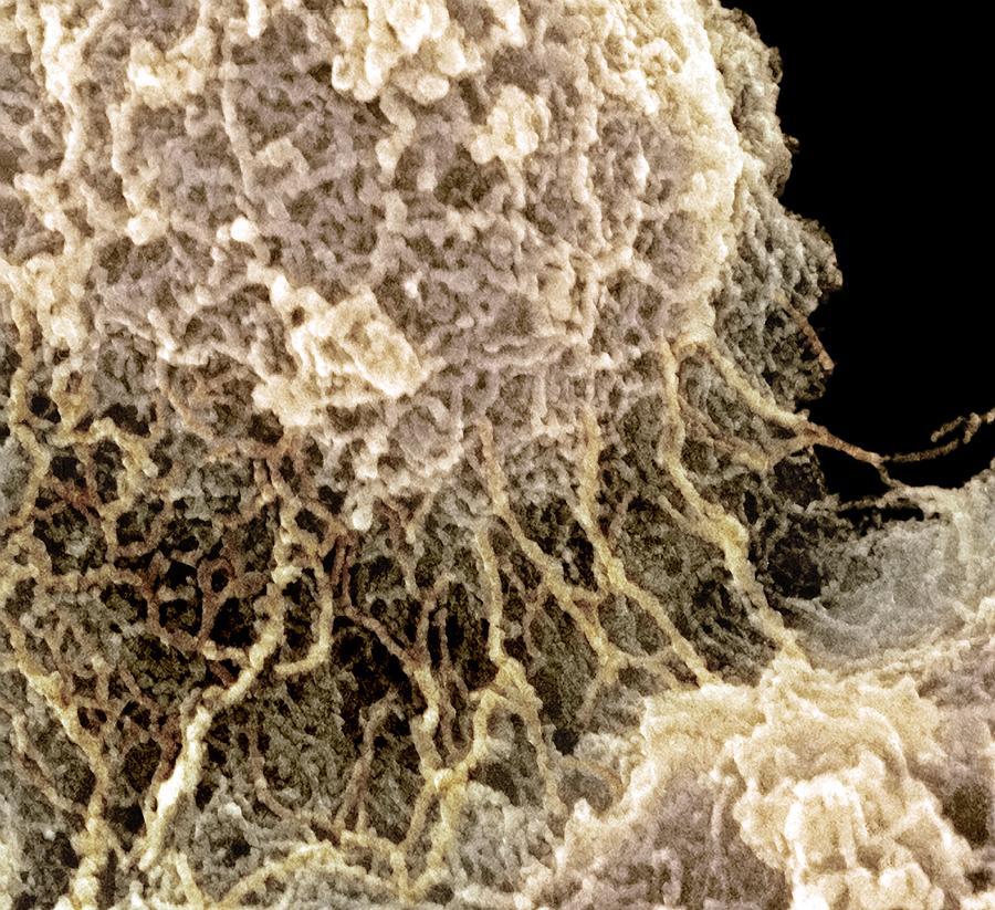 Nucleolus, Sem Photograph by