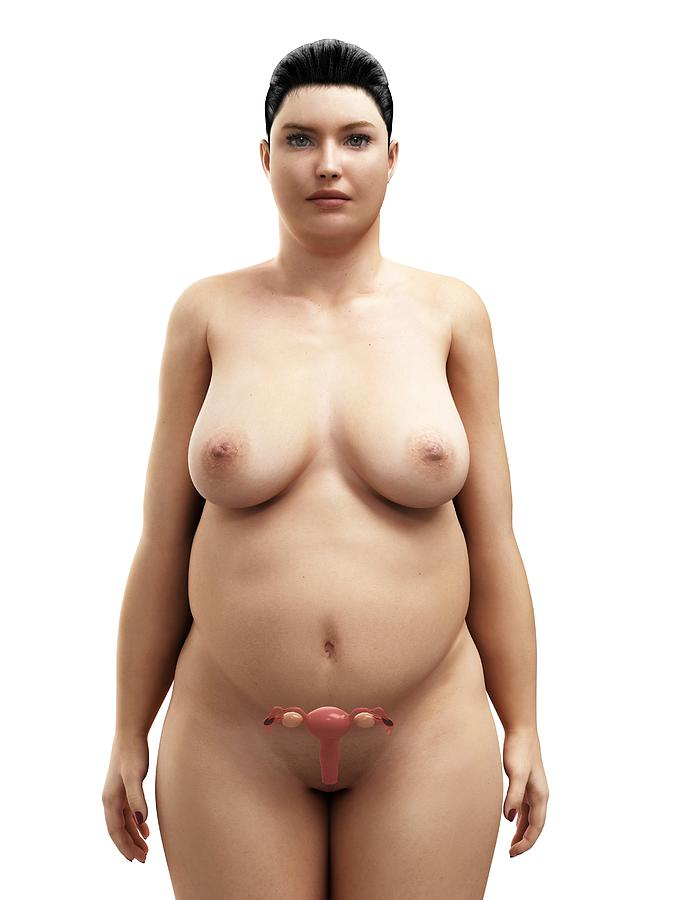 Obese Womans Uterus, Artwork Photograph