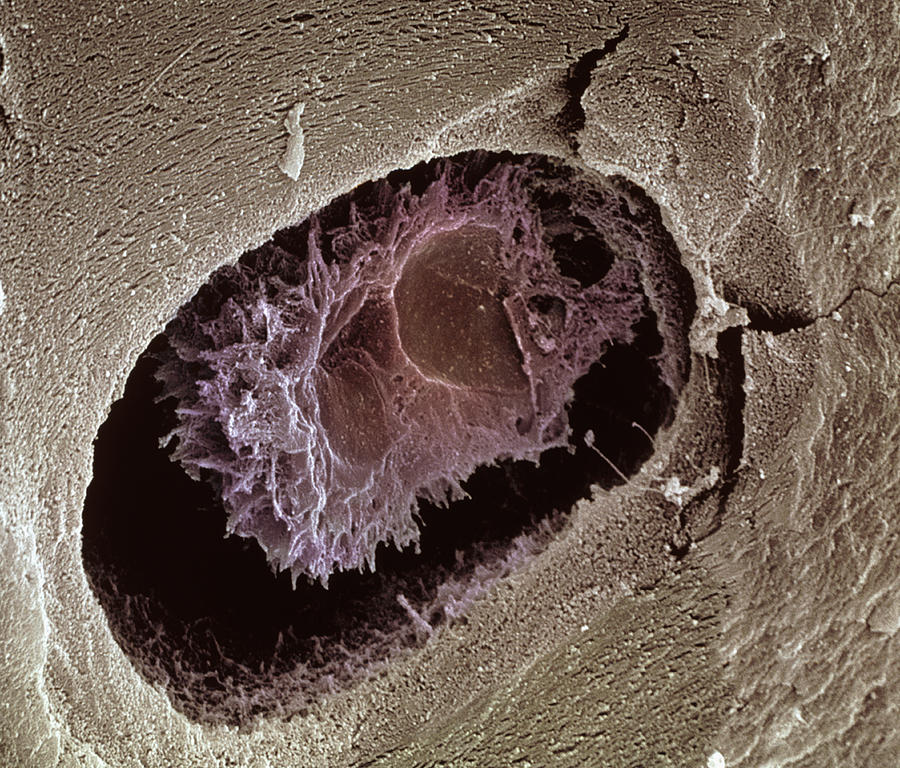Magnified Image Photograph - Osteocyte, Sem by Steve Gschmeissner