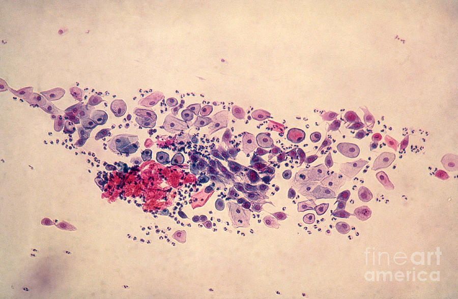 Medical Photograph - Pap Smear, Parabasal Cells by Science Source
