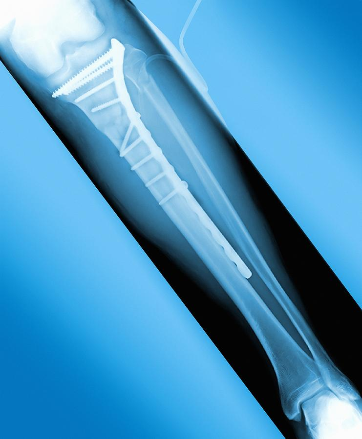Pinned Broken Leg, X-ray Photograph  - Pinned Broken Leg, X-ray Fine Art Print