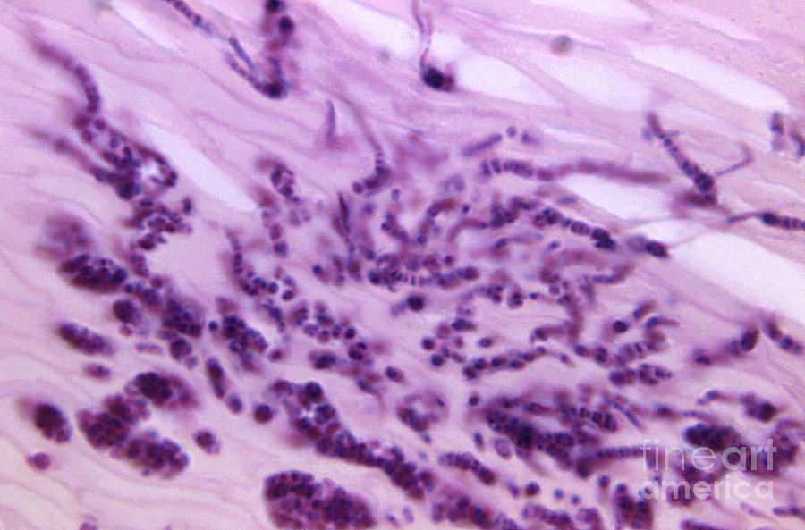 Pitted Keratolysis, Lm Photograph