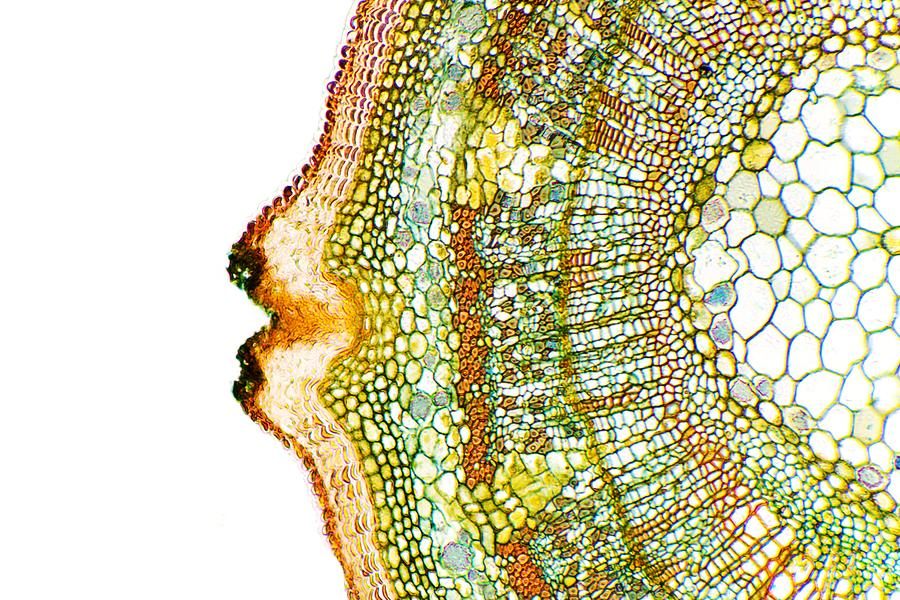 Plant Breathing Pore, Light Micrograph Photograph  - Plant Breathing Pore, Light Micrograph Fine Art Print
